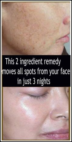 This a pair of ingredient remedy removes all spots from your face in exactly three nights wow For the preparation you'll want utterly natural ingredients. Potato and lemon Ingredients: 1 pota…