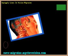 Squiggly Lines In Vision Migraine 173353 - Cure Migraine