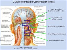Five most common compression points- Surgical_Treatment_Chronic_Migraine_Headaches. Chronic Migraines, Chronic Fatigue, Chronic Pain, Muscle Fascia, What Is Fibromyalgia, Fibromyalgia Treatment, Vertebral Artery, Occipital Neuralgia, Craniosacral Therapy