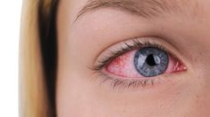 12 Unexpected Ways Psoriatic Arthritis Can Affect the Body: Video - HealthiNation Rheumatische Arthritis, Yoga For Arthritis, Juvenile Arthritis, Natural Remedies For Arthritis, Rheumatoid Arthritis Treatment, Types Of Arthritis, Arthritis Exercises, Dry Eye Remedies, Shoulder Arthritis