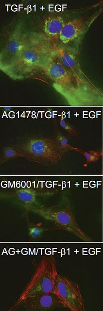 Figure 5D from TGF-β1 -Induced Expression of the Anti-Apoptotic PAI-1 Protein Requires EGFR Signaling Published in Cell Communication Insights