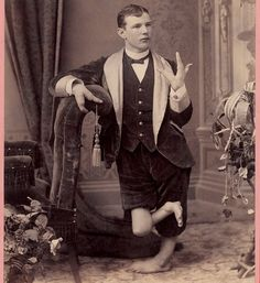 Fin hands In the 1860s, a photographer named Charles Eisenmann photographed thousands of circus freaks.