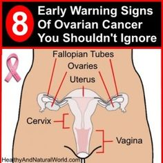 8 Early Warning Signs Of Ovarian Cancer You Shouldn't Ignore - http://www.healthyandnaturalworld.com/early-warning-signs-of-ovarian-cancer/