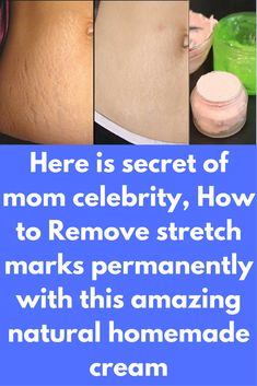 Here is secret of mom celebrity, How to Remove stretch marks permanently with this amazing natural homemade cream Today I will share how to get rid of stretch marks permanently in just 1 month. This is a homemade natural remedy and it is very effective and efficient in getting the best desired result. Ingredients, you will need- 1 tablespoon of Shea butter 1 tablespoon of beetroot juice 2 tablespoon of aloe Vera gel( I …