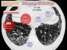 Pulmonary CT findings in Sjögren