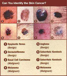 Basal Cell Skin Cancer