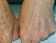 Brown spots or as they people also know them – liver spots and age spots appear as flat and brown or dark spots on the skin. They can be different in size. They mostly appear on the hands, shoulder… Age Spots On Face, Brown Spots On Skin, Skin Spots, Dark Spots, Brown Skin, Age Spot Remedies, Natural Remedies, Age Spot Removal, Skin Care Tips