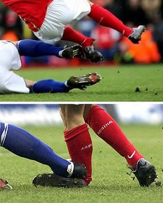 During a match in February 2008, while playing for Arsenal, Eduardo Da Silva received an appalling tackle by Birmingham City defender Martin Taylor, who was immediately dismissed. As a consequence, Da Silva had a broken left fibula and dislocated his left ankle. Almost a year later, he returned to the Arsenal first team, after a full recovery.