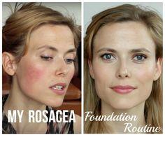Best Foundation For Rosacea, Best Makeup For Rosacea, Rosacea Makeup, Foundation Routine, Makeup Foundation, Skin Makeup, Rosacea Remedies, Anti Redness, Sensitive Skin Care