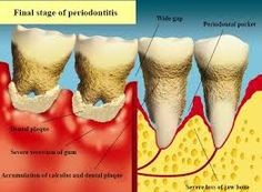 Dr. Dean Salo offers a professional intervention for periodontal disease.