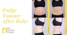Podgy Tummy After Baby How To Reduce Tummy, Mummy Tummy, After Baby, Bra, Swimwear, Brassiere, Bra Tops, Swimsuit, Swimsuits