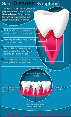 How to find gum disease symptoms ?