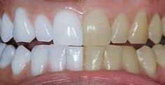 Wybielanie zębów to nic trudnego. Oto skuteczna domowa metoda na wybielenie zębów. Zobacz jak tanio wybielić swoje zęby i cieszyć się pięknym uśmiechem!