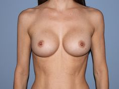 Breast Augmentation After Photo | Denver & Colorado Springs, CO | The Center for Cosmetic Surgery