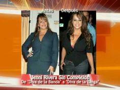 Cirugías de las Famosas: Antes y Después / Before and After: Celebrity P...