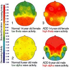 eeg of adhd brain.  Neurology of ADHD: The brain of Inattention, Impulsivity and Hperactivity.  This is quite technical - so maybe something to save and study later...