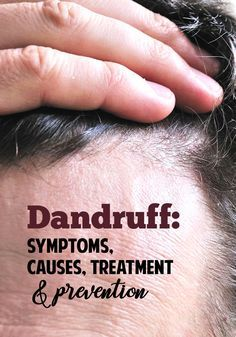 Causes, Treatment and Prevention What is dandruff? Causes of dandruff and how to treat it so it doesn't return.What is dandruff? Causes of dandruff and how to treat it so it doesn't return. How To Prevent Dandruff, What Causes Dandruff, How To Treat Dandruff, Home Remedies For Dandruff, Getting Rid Of Dandruff, Treating Dandruff, Natural Remedies, Health Remedies, Home Remedies