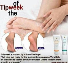 "Aloe Vera Gelly and Propolis Cream This week's product tip is from Zoe Pope: ""Get your feet ready for the summer by using Aloe Vera Gelly on the heels to soothe and Aloe Propolis Creme to leave them smooth and supple. Forever Aloe, Forever Living Aloe Vera, My Forever, Propolis Creme, Clean9, Forever Living Business, Forever Living Products, Aloe Vera Gel, Health And Wellbeing"