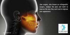 Jaw surgery, also known as orthognathic surgery, realigns the jaws and teeth to improve the way they work and to improve your appearance.