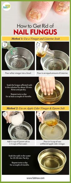 How to Get Rid of Toenail Fungus and Destroy the Infection with This Listerine and Vinegar Remedy natural beauty tips Listerine, Toenail Fungus Remedies, Toenail Fungus Treatment, Toe Fungus Cure, Fungus Toenails, Nail Infection Treatment, Health Tips, Beauty Tips, Homemade Cosmetics