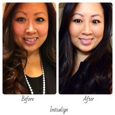 Invisalign before and after. I wore my Invisalign for 10 months because I used AcceleDent. Best investment and I am so happy with my results.