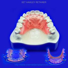 Can you buy false teeth online using do it yourself impression kit buy hawley retainers online retainers after braces solutioingenieria Choice Image