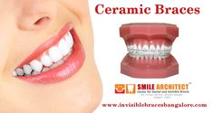 Ceramic Braces, Braces Smile, Invisible Braces, Dental, Ceramics, Ceramica, Pottery, Ceramic Art, Teeth