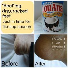 How to heal your heels for flip-flop season. If you dont have Coconut oil on hand, Vaseline also works wonders!