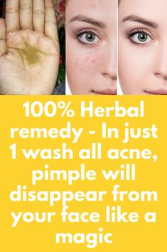 100% Herbal remedy - In just 1 wash all acne, pimple will disappear from your face like a magic Today I will share neem face wash gel for acne, pimples and spotless skin. Ingredients you will need – 1 teaspoon of tragacanth gum powder (gond) ¼ cup of grated soap (preferably dove because it is not too harsh on skin) One hand full of fresh or dried neem leaves (azadirachta indica) 3 vitamin E … #acnefacewash