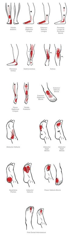 trigger point referral pain patterns for the ankle & foot: