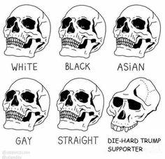 Die-hard Trump Supporter