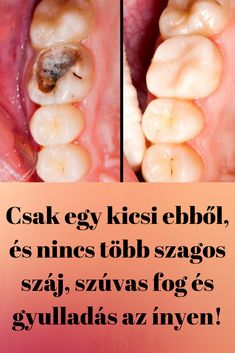 Csak egy kicsi ebből, és nincs több szagos száj, szúvas fog és gyulladás az ínyen! Natural Teething Remedies, Natural Sleep Remedies, Health App, Health And Wellness, Health Fitness, Herbal Remedies, Cinnamon Benefits, Healthy Relationships, Diet