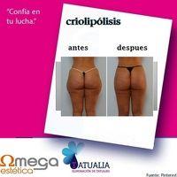 Criolipólisis, elimina tu grasa localizada con frío