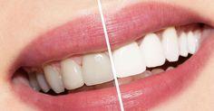 Fantástico! Método caseiro para clarear os dentes - # #beleza #clarearosdente #dentesbrancos #saúde