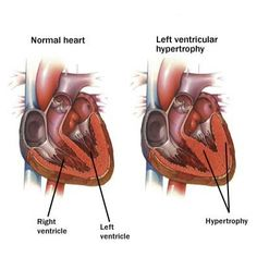 Home Remedies For Hypertension - Natural Treatments & Cure For Hypertension   Search Home Remedy