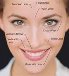 what areas can you get botox