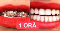 baking soda on encounter side effects baking soda on encounter side effects,Natural Teeth Whitening baking soda uses Related posts:Most people are aware that brushing their teeth twice a. Beauty Tips For Hair, Best Beauty Tips, Diy Beauty, Beauty Hacks, Beauty Kit, Baking Soda For Skin, Baking Soda Uses, Natural Teeth Whitening, Ice Cream Cakes