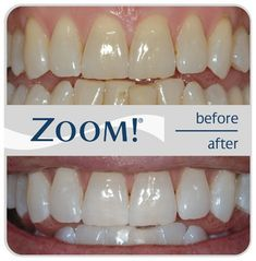 My dentist actually told me about this. Use a little toothpaste, mix in one teaspoon baking soda plus one teaspoon of hydrogen peroxide, half a teaspoon water. Thoroughly mix then(Baking Face White Teeth) Homemade Beauty, Diy Beauty, Beauty Hacks, Beauty Ideas, Health Remedies, Home Remedies, My Dentist, Tips Belleza, Health And Beauty Tips