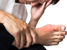 Arthritis gout treatment gout foods to avoid list,gout of foot gout symptoms foot pain,gout treatment foods how to treat the gout. Natural Remedies For Gout, Gout Remedies, Holistic Remedies, Natural Healing, Herbal Remedies, How To Treat Gout, How To Cure Gout, Natural Treatments, Health Tips