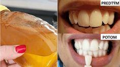 Dajte zbohom zlému dychu, zubnému kameňu a zničte zlé baktérie s pomocou jedinej suroviny   Báječné Ženy