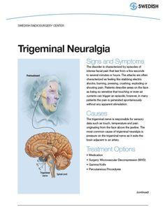 trigeminal neuralgia - Bing Images