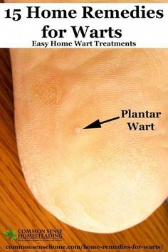 15 Home Remedies for Warts - Cheap and easy to use, these home wart treatments w. - 15 Home Remedies for Warts – Cheap and easy to use, these home wart treatments will help you get - Home Remedies For Warts, Warts Remedy, Herbal Remedies, Natural Remedies, Holistic Remedies, Health Remedies, Foot Warts, Warts On Hands, Warts On Face