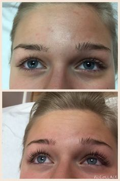 Lashlift before and after