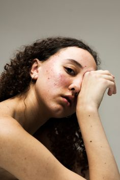 how one photographer's struggle with acne inspired her most vulnerable portrait series yet Human Photography, Portrait Photography, Beauty Photography, Photography Ideas, Girl With Acne, Raw Beauty, Portraits, Drawing People, Poses