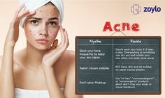 Acne Myths and Facts..!!