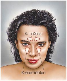 Ein ganz normaler Schnupfen kann als Komplikation zu einer Nasennebenhöhlen bzw. Stirnnebenhöhlenentzündung münden. (Bild: Henrie/fotolia)