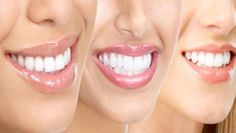 15 tips voor witte tanden op natuurlijke wijze