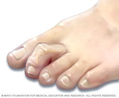 Hammertoe and mallet toe — Comprehensive overview covers causes, symptoms and treatment of these foot deformities. How To Treat Bunions, Hammer Toe Correction, Hammer Toe Surgery, Corn On Toe, Best Easy Dinner Recipes, Arthritis Remedies, Bunion Remedies, Rheumatoid Arthritis, Life Hacks