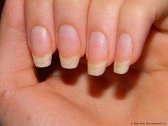 Чтобы ногти всегда выглядели ухоженными и были белыми, длинными и крепкими советую этот рецепт! Сама им пользуюсь, результат поражает!