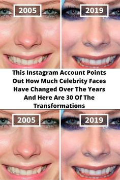 This #Instagram Account #Points Out How Much Celebrity Faces Have #Changed Over The Years And Here Are 30 Of The #Transformations